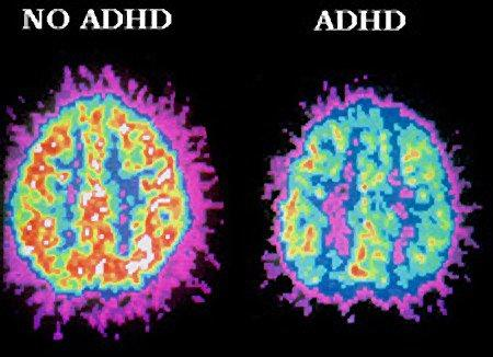 What struggles do people with ADHD face?